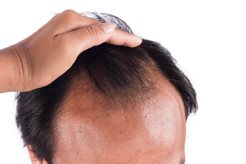 Best Cure For Hair Loss
